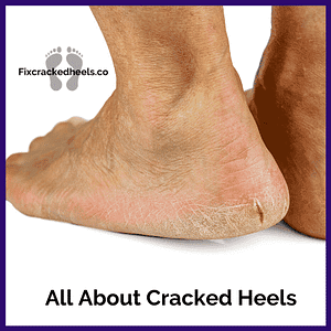 Everything you wanted to know about cracked heels.