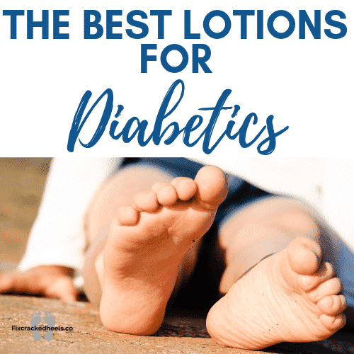 the best lotions for diabetics