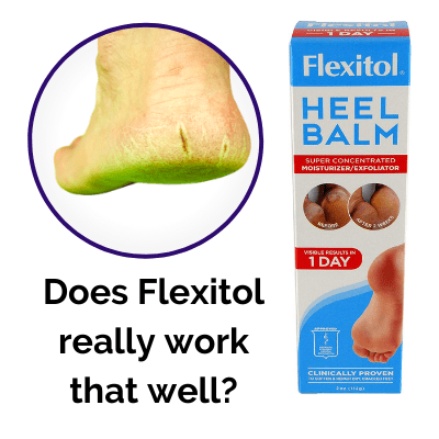 Does Flexitol really work that well?