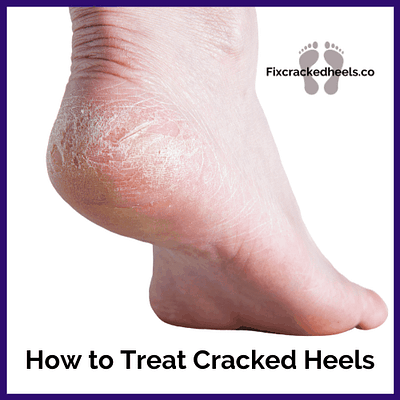 Learn tips and tricks on how to treat cracked heels and heel fissures