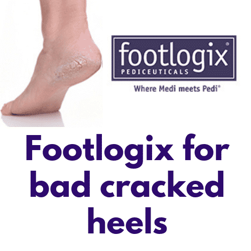 Try footlogix for bad cracked heels