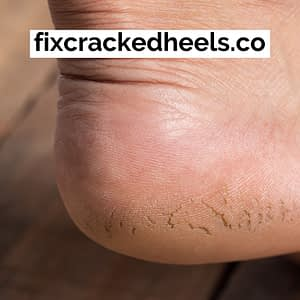Fix cracked heels