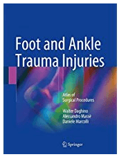 Foot and Ankle Trauma Injuries: Atlas of Surgical Procedures 1st-This full-color atlas offers a systematic guide to performing surgeries for the most common traumatic lesions of the foot and ankle. It features a wealth of didactic illustrations, achieved with a particular technique employing colors and transparencies that also reveals those anatomic structures that are not visible in the surgical field, but essential to a good outcome.