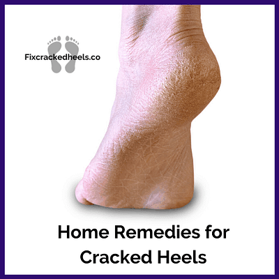 Discover the best home remedies for cracked heels