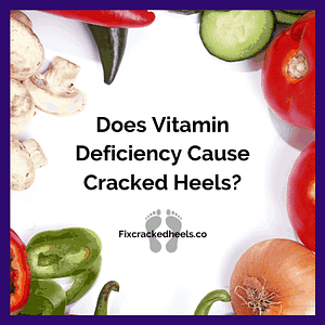 Does vitamin Deficiency CAuse Cracked Heels? To find out more click here.