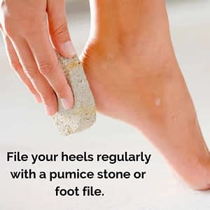 Excellent advice from fixcrackedheels.co