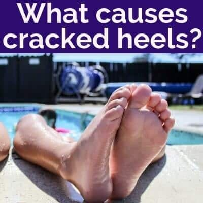 What causes cracked heels