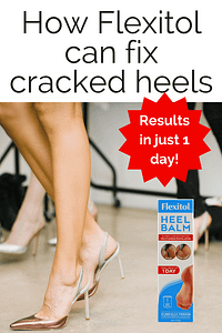How Flexitol can heal cracked heels