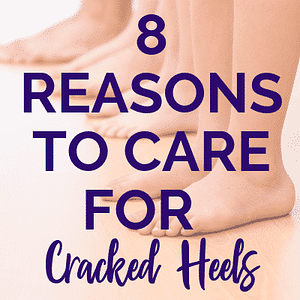 8 reasons to care for cracked heels