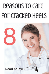 Why do you need to take care of your cracked heels? Click to find out