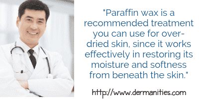 Learn how paraffin helps cracked heels