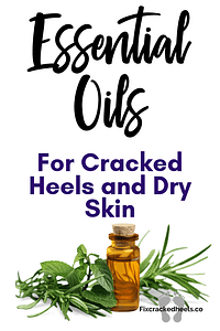 Essential oils for cracked heels and dry skin
