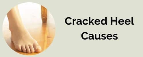What causes cracked heels?- Fix cracked heels today!