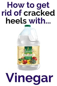 How to get rid of cracked heels with vinegar